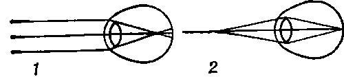 Ход лучей в миопическом глазу: 1 — параллельные лучи (исходят от далеко расположенных предметов) фокусируются впереди сетчатки; 2 — расходящиеся лучи (исходят от близко расположенных предметов) фокусируются на сетчатке.