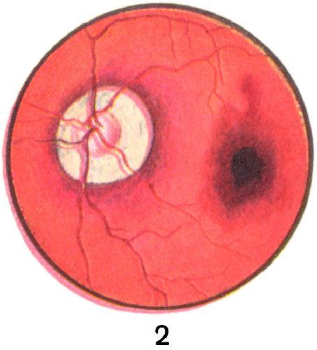 Рис. 2. Задняя стафилома и центральный хориоретинит с кровоизлиянием