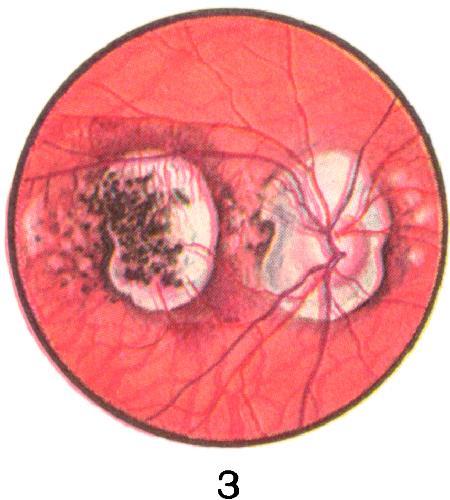 Рис. 3. Центральный хориоретинит с кровоизлияниями.
