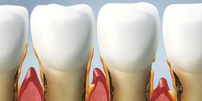 Воспалившиеся десна между зубами.